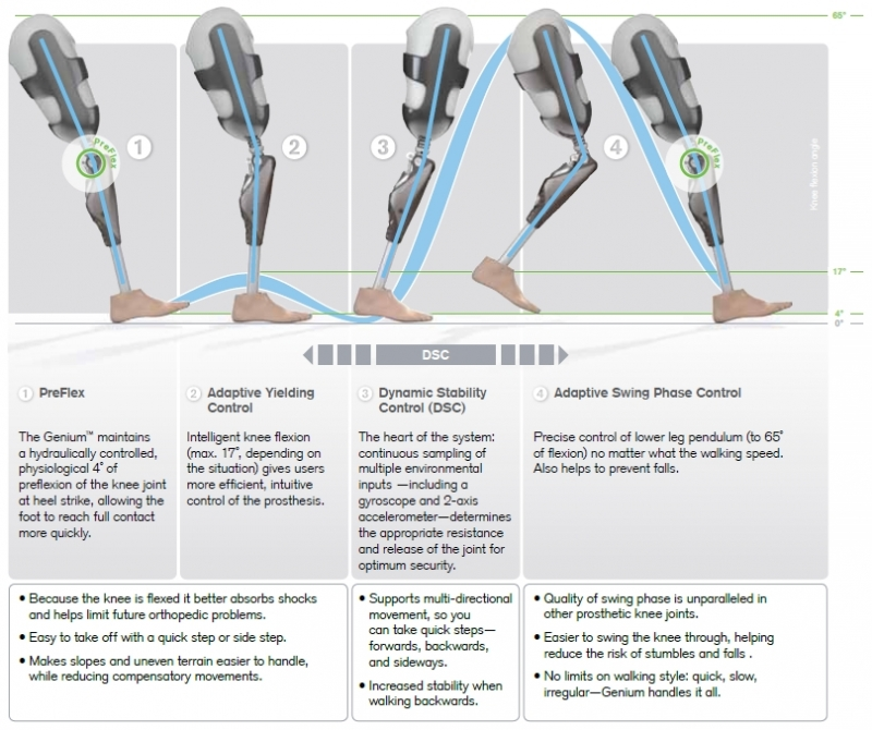 How Optimized Physiological Gait (OPG) works